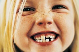 girl-brushing-teeth-136393757006703901-141015160438